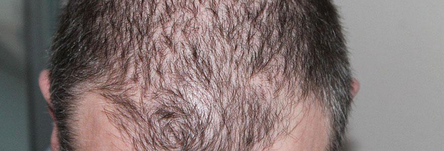 Eviter la chute de cheveux